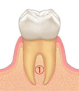 歯3.jpg
