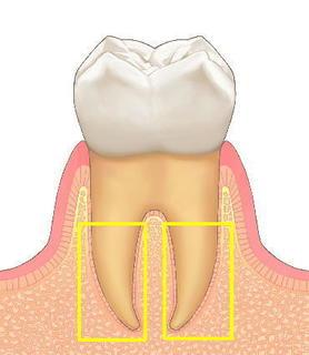 歯1.jpg